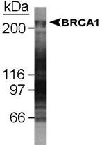 MAB2363 - BRCA1 / RNF53