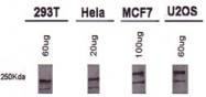 MAB2364 - BRCA1 / RNF53