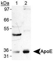 MAB2371 - Apolipoprotein E / Apo E