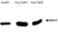 MAB2372 - APEX1 / REF-1