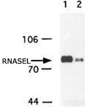 MAB2378 - RNASEL