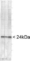 MAB2381 - UCHL1 / PGP9.5