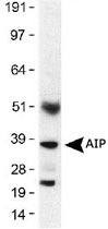 MAB2382 - AIP / XAP2