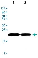 MAB2689 - Ferritin heavy chain (FTH1)