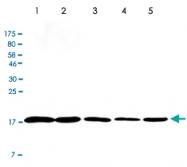 MAB2699 - Cofilin-1