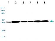 MAB2700 - CDK4