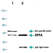 MAB2703 - DFFA / ICAD