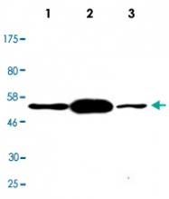 MAB2711 - TP53 / p53