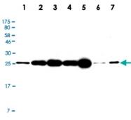 MAB2717 - UCHL1 / PGP9.5