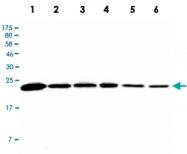 MAB2725 - Peroxiredoxin-3 / PRDX3