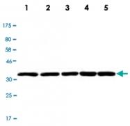 MAB2731 - LDHB