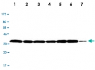 MAB2732 - LDHB