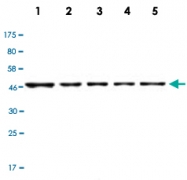 MAB2733 - Casein kinase I delta