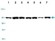 MAB2735 - Radixin / RDX