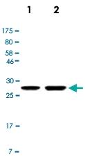 MAB2741 - Calretinin