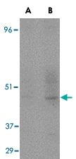 MAB2748 - CD209 / DC-SIGN