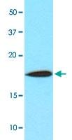 MAB3208 - Cofilin-1
