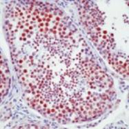 MAB3432 - DNA-PKcs / PRKDC / XRCC7