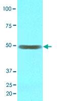 MAB3588 - Epoxide hydrolase 1 / EPHX1