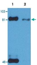 MAB3641 - STAT1