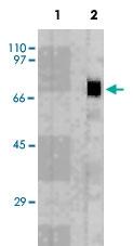 MAB3711 - Perforin 1 / PRF1