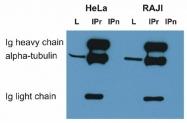MAB3826 - alpha Tubulin / TUBA1B