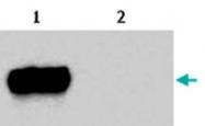 MAB3860 - CD222 / IGF2R