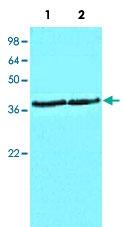 MAB5378 - CSNK1A1