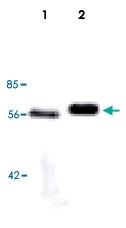 MAB5529 - Lipoprotein lipase