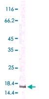 MAB5536 - MCP1 / CCL2