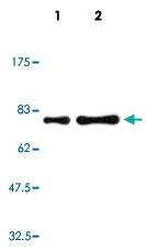 MAB5555 - Human IgM