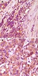 MAB5581 - Fibulin-5