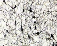 MAB5595 - CD271 / NGFR