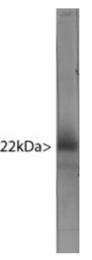 MO22132-100 - Visinin-like protein 1 / HLP3