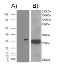 NB100-1074 - AKR1A1 / ALDR1