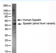 NB100-62922 - Spastin / SPAST