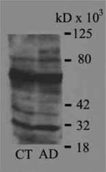NB100-63093 - 4-Hydroxy-2-Nonenal / HNE