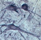 NB100-91297 - Synaptotagmin-2