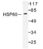 NB100-91819 - HSP60