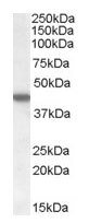 NB100-93388 - Casein kinase I epsilon