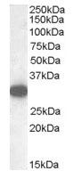 NB100-96920 - Monoglyceride lipase