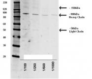 NB100-63239 - Tetanus toxin