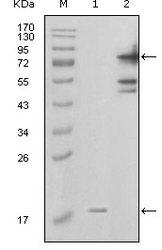 NBP1-28888 - Visfatin / NAMPT