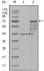 NBP1-28895 - Chitinase 1
