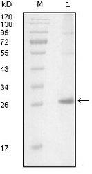 NBP1-28893 - Tyrosine-protein kinase ITK/TSK