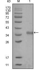 NBP1-28863 - NCOR1