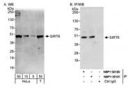 NBP1-30101 - SIRT6