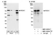 NBP1-30104 - RIOK1