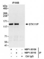 NBP1-30109 - STK11IP
