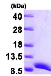 NBP1-30171 - ATOX1
